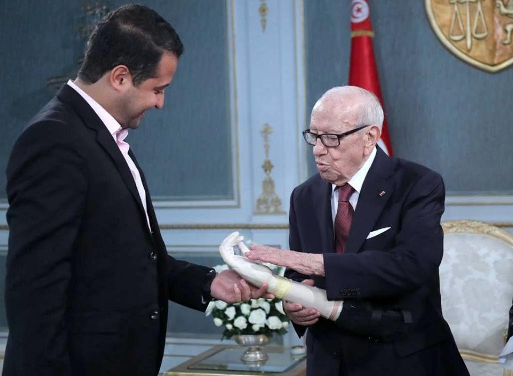 شاب تونسي يبتكر أطرافا صناعية ذكية لمبتوري الأيدي