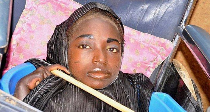 الفتاة التيجيرية برأس بالغ وجسد رضيع