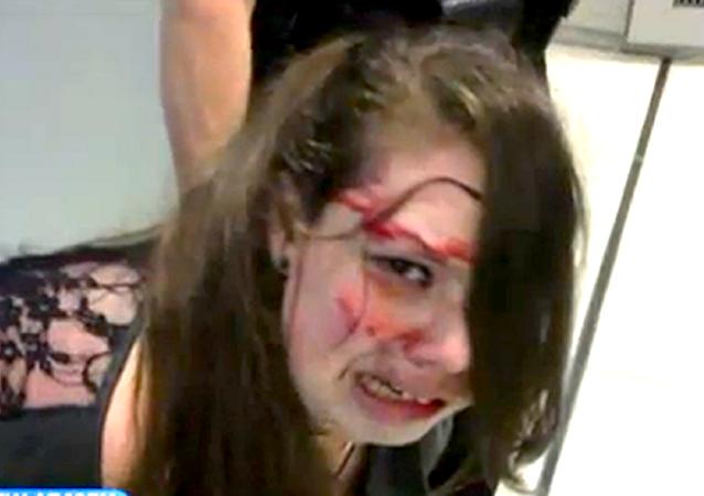 ضرب فتاة أمريكية مصابة بالسرطان