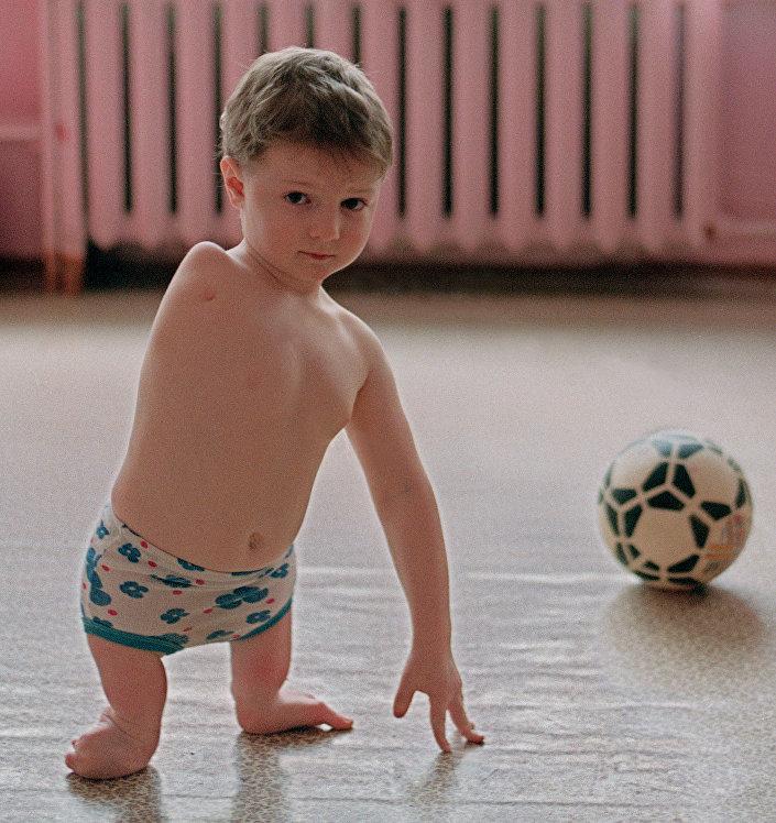 كارثة تشيرنوبيل - طفل ولد مصاب بالإعاقة بعد الكارثة، 4 أغسطس/ آب 1992
