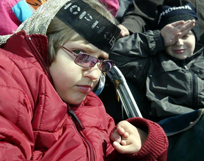 كارثة تشيرنوبيل - طفلة تضع اشارة سوداء تشيرنوبيل، ولدت مصابة بالإعاقة بعد الكارثة