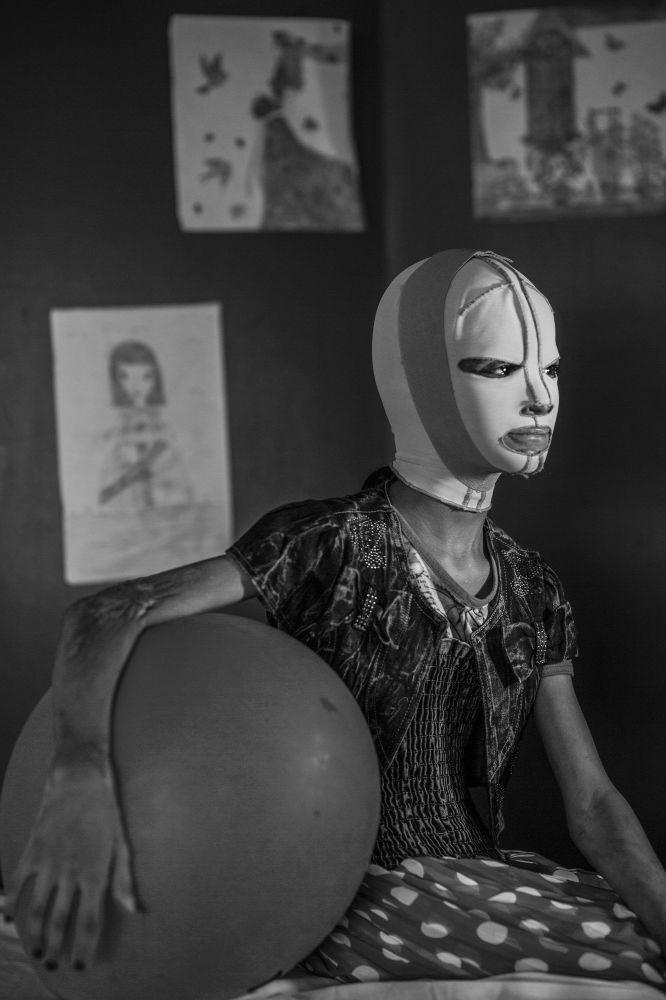 مسابقة صورة الصحافة العالمية لعام 2018 - صورة بعنوان صور الحرب، منال للمصور أليسيو مامو من إيطاليا، الفائزة بالمرتبة الثانية  في فئة التصوير أشخاص