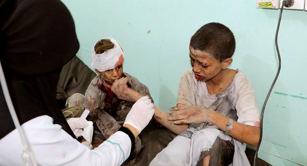إصابة 127 شخصاً غالبيتهم أطفال بغارة لطيران التحالف على حافلة أطفال في مدينة ضحيان شمال صعدة. اليمن
