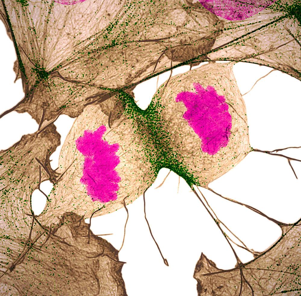 صورة تقسيم الخلايا الليفية للحمض النووي للإنسان، للمصور الدكتور دايلان برونيت ونيلاي تانيجا، الحائزة على المرتبة الـ11  في المسابقة