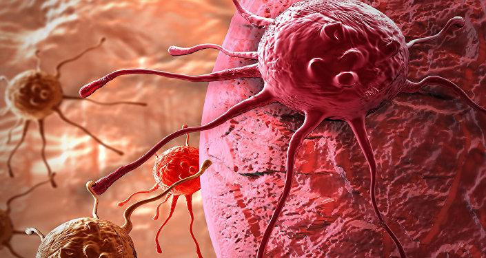 عالم يكشف الأعراض الأولى لتطور مرض السرطان