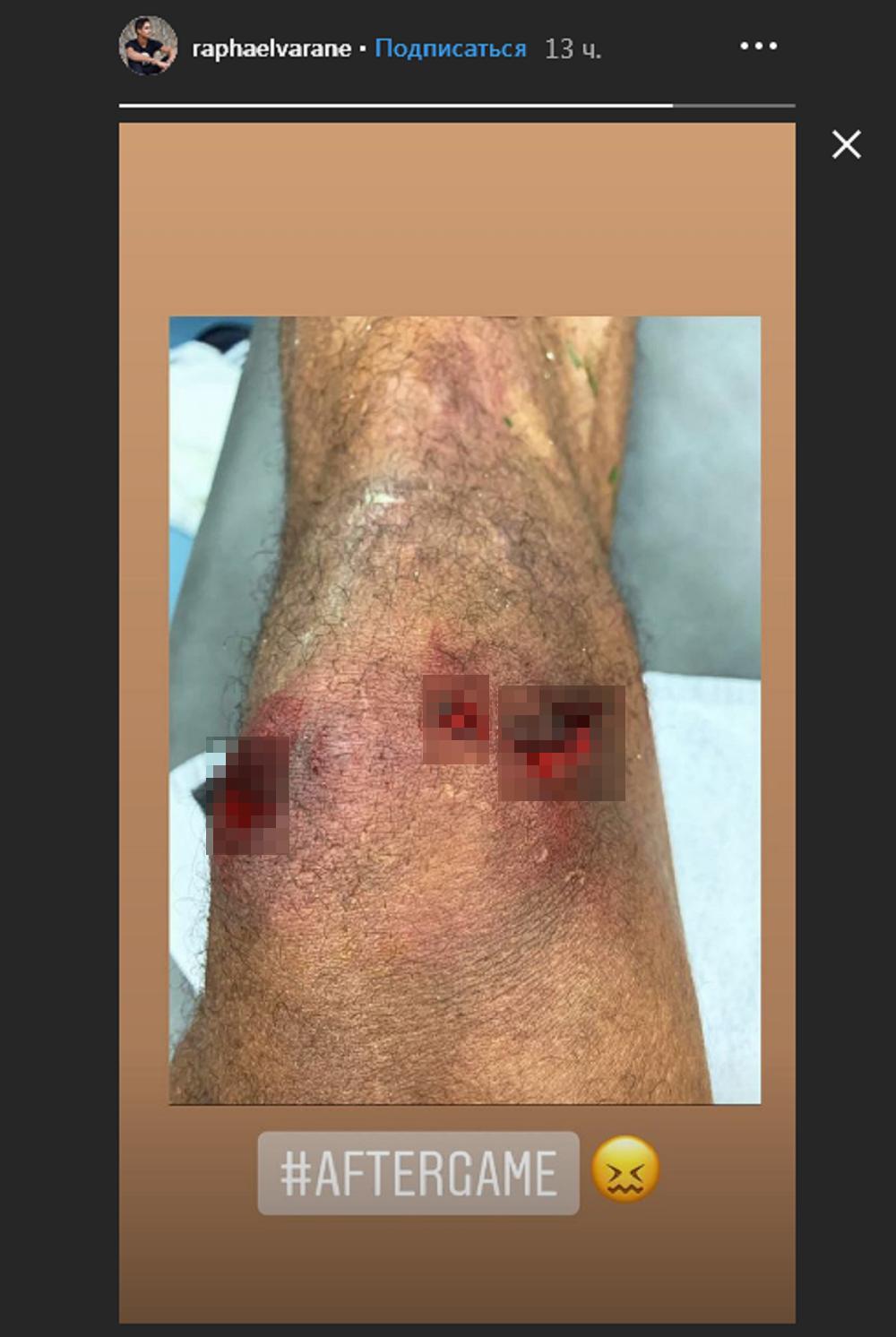 اصابة فاران لاعب ريال مدريد