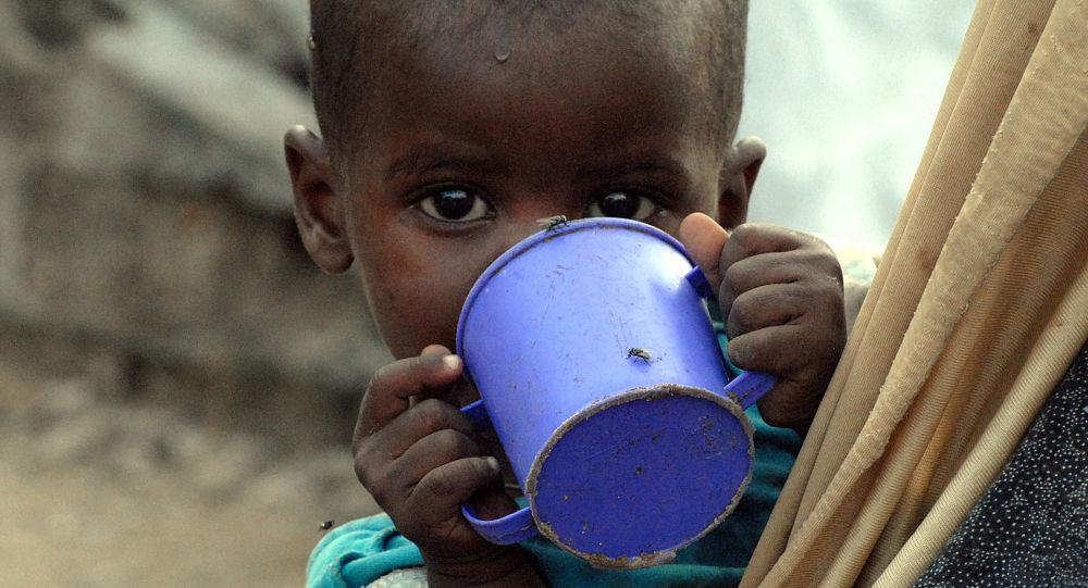 طفل نازح  في الصومال يعاني من سوء تغذية