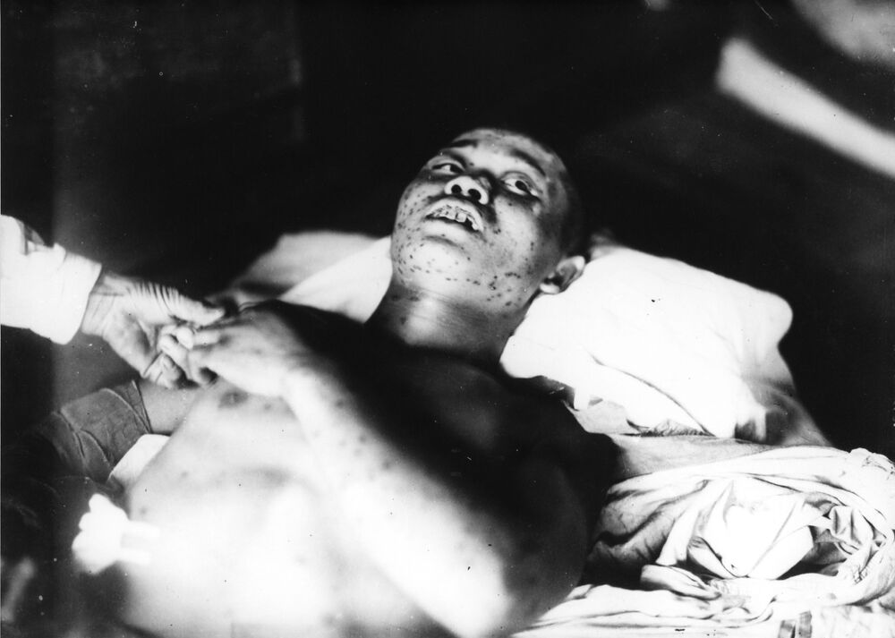 جندي، 21 عاما، تعرض لقصف القنبلة الذرية في مدينة هيروشيما يوم 6 أغسطس/ آب 1945