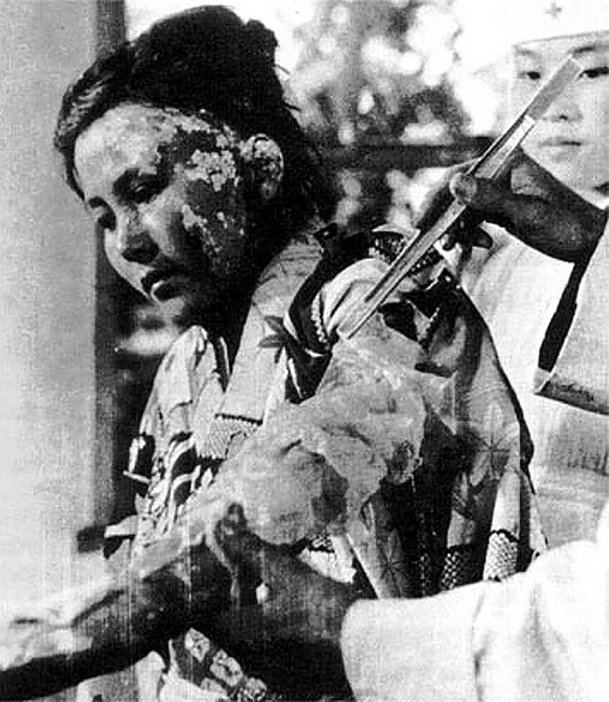 الفتاة تويوكو كوجاتا، 22 عاما، ضحية الانفجار الذري تتلقى العلاج في مستشفى هيروشيما للصليب الأحمر، 6 أكتوبر/ تشرين الأول 1945