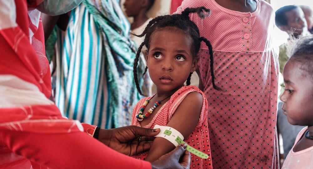 طفلة إثيوبية، تبلغ من العمر 4 سنوات، لاجئة من تيغراي، يتم فحصها في في مركز عبور فيليج إيت لسوء التغذية  بالقرب من الحدود الإثيوبية في القضارف شرق السودان، 2 ديسمبر 2020.