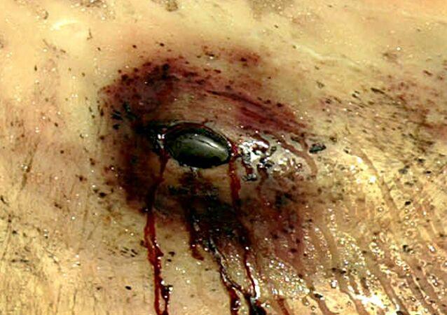 عين حوت مصابة