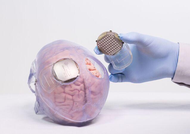 علماء يغرسون مادة في قشرة الدماغ