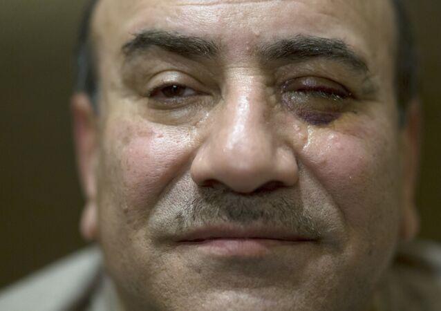 هشام جنينه بعد الاعتداء عليه