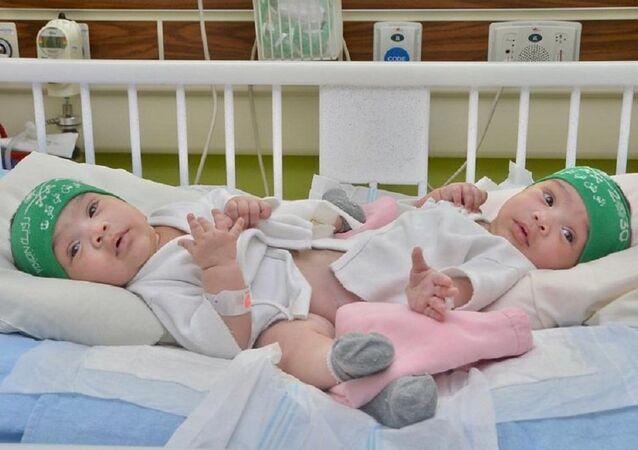 تجري السعودية عملية فصل التوأم السيامي رقم 46، في مستشفى الملك عبدالله التخصصي للأطفال بمدينة الرياض ، بعد تأجيلها الشهر الماضي لدواعي طبية.