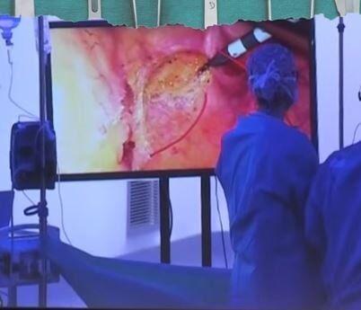 إجراء عملية جراحية عن بعد