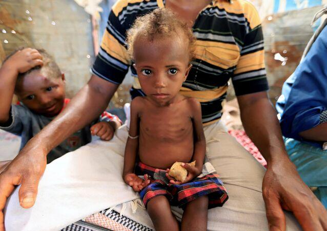 هناء أحمد علي بحر فتاة تعاني من سوء التغذية تجلس على حجر والدها في مدينة من الأكواخ في الحديدة باليمن