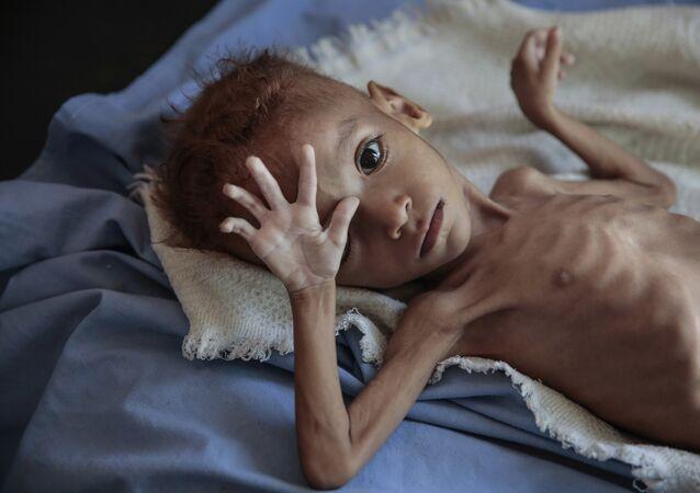فتى يعاني من الكوليرا سوء التغذية الحاد يقع على سرير في مستشفى في مركز صحي في حجة باليمن
