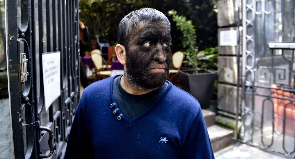 الرجل المكسيكي خيسوس أسيفيس، المعروف باسم الرجل الذئب، لفرط نمو الشعر على الوجه، 2015