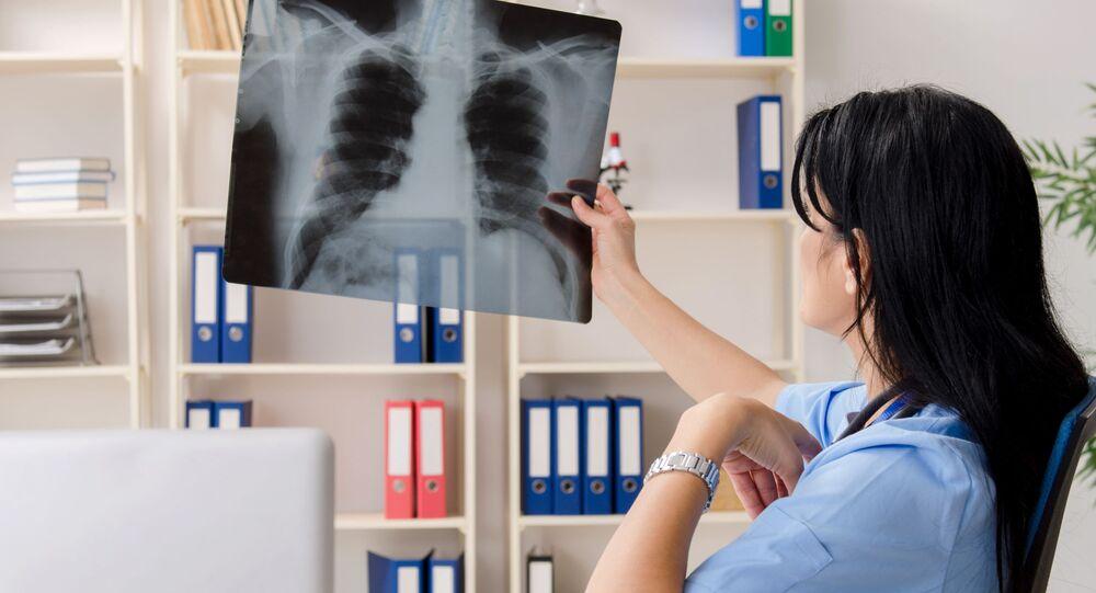 طبيبة تنظر إلى الأشعة السينية للرئتين