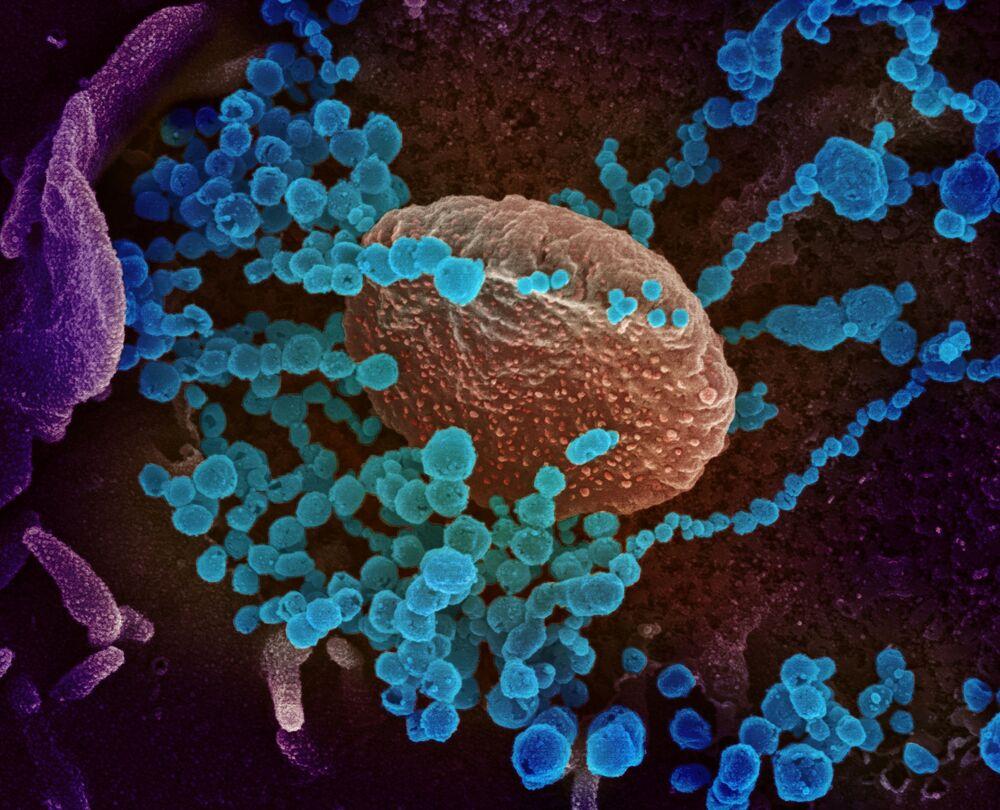 تُظهر صورة المجهر الإلكتروني (الأجسام الزرقاء المستديرة)، والمعروفة أيضًا باسم الفيروس التاجي الجديد SARS-CoV-2، الفيروس الذي يسبب مرض COVID-19.